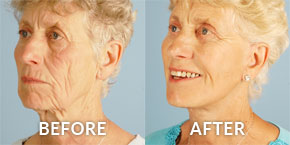 Before & After Patient Procedure