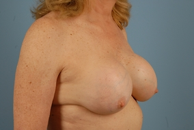 Revision Breast Augmentation Before & After Patient #2068
