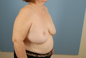 Breast Reduction Before & After Patient #1983