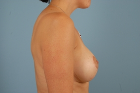 Breast Lift Before & After Patient #1715