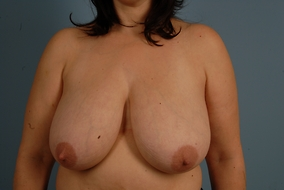 Breast Reduction Before & After Patient #2016