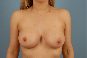 Breast Augmentation Before & After Patient #1485