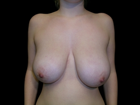 Breast Reduction Before & After Patient #1979