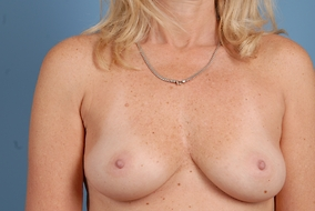 Breast Augmentation Before & After Patient #1470