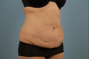 Abdominoplasty Before & After Patient #657