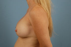 Revision Breast Augmentation Before & After Patient #2095
