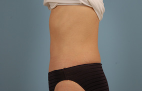 Abdominoplasty Before & After Patient #880