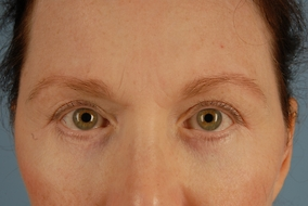 Brow Lift Before & After Patient #1641