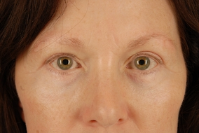 Brow Lift Before & After Patient #2090