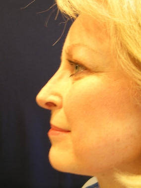Rhinoplasty Before & After Patient #1862