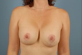 Breast Lift with Implants Before & After Patient #1840