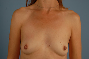 Breast Augmentation Before & After Patient #1588