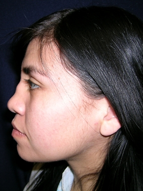 Rhinoplasty Before & After Patient #1793