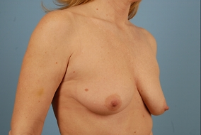 Breast Lift with Implants Before & After Patient #1893