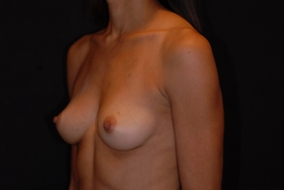 Breast Augmentation Before & After Patient #1462