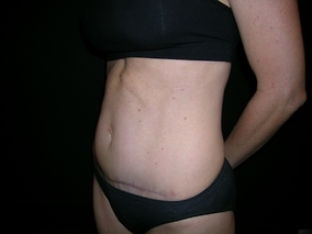 Abdominoplasty Before & After Patient #645