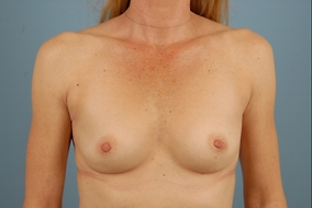 Breast Augmentation Before & After Patient #1455