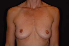 Breast Lift with Implants Before & After Patient #1728