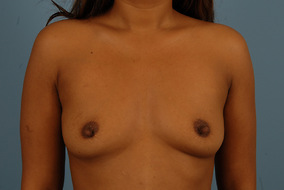 Breast Augmentation Before & After Patient #1618