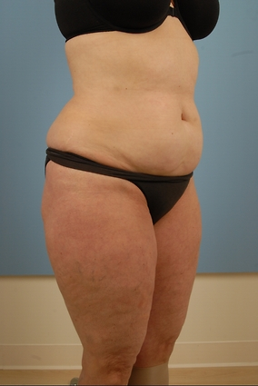 Abdominoplasty Before & After Patient #666