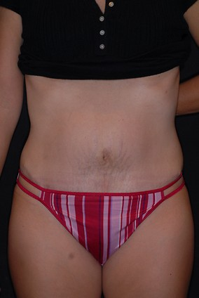 Abdominoplasty Before & After Patient #771