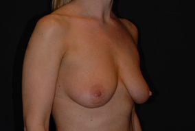 Breast Augmentation Before & After Patient #1184