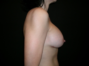 Breast Augmentation Before & After Patient #1113
