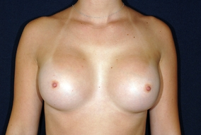 Breast Augmentation Before & After Patient #1247