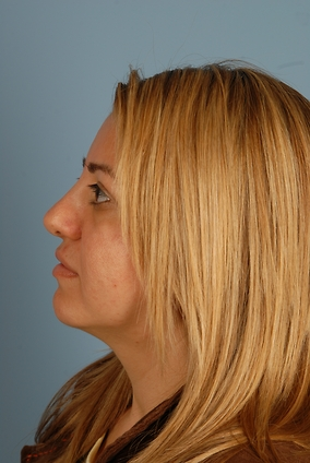 Rhinoplasty Before & After Patient #1942