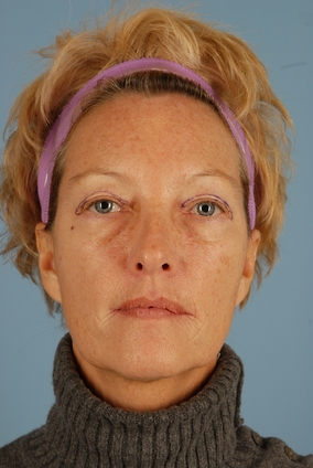 Upper Eyelid Blepharoplasty Before & After Patient #1695