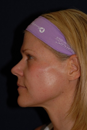 Laser Resurfacing Before & After Patient #2345