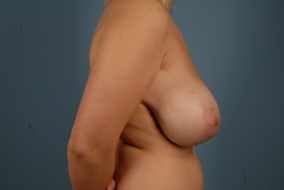 Breast Reduction Before & After Patient #1936