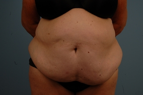 Abdominoplasty Before & After Patient #932