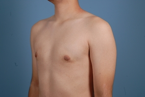 Male Breast Reduction Before & After Patient #2154