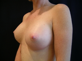 Breast Augmentation Before & After Patient #1555