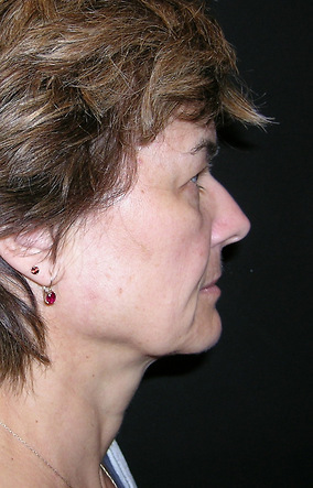Facelift Before & After Patient #2356