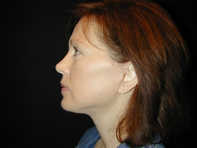 Facelift Before & After Patient #1659