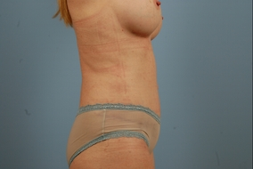 Abdominoplasty Before & After Patient #922