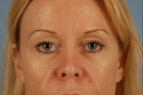 Brow Lift Before & After Patient #2061