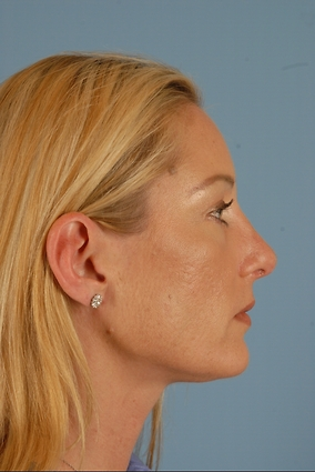 Rhinoplasty Before & After Patient #1902