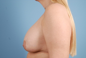 Breast Lift with Implants Before & After Patient #1821