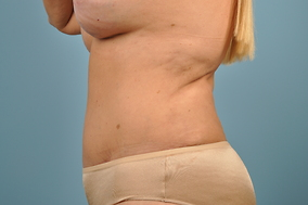 Abdominoplasty Before & After Patient #757