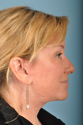 Facelift Before & After Patient #2268