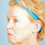 Facelift Before & After Patient #2363