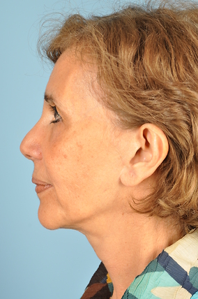 Facelift Before & After Patient #2134