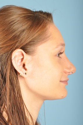 Rhinoplasty Before & After Patient #1799