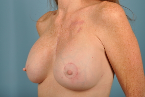 Revision Breast Augmentation Before & After Patient #1985