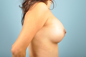 Breast Augmentation Before & After Patient #1266
