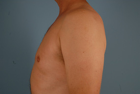 Male Breast Reduction Before & After Patient #2136