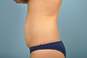 Abdominoplasty Before & After Patient #679